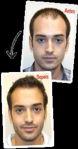 Depoimento HairLoss Blocker