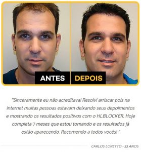 Depoimentos HairLoss Blocker