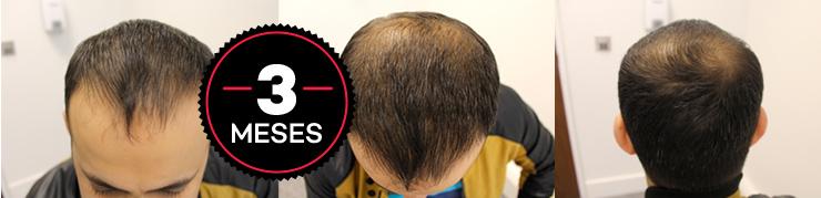 HairLoss Blocker Funciona Mesmo