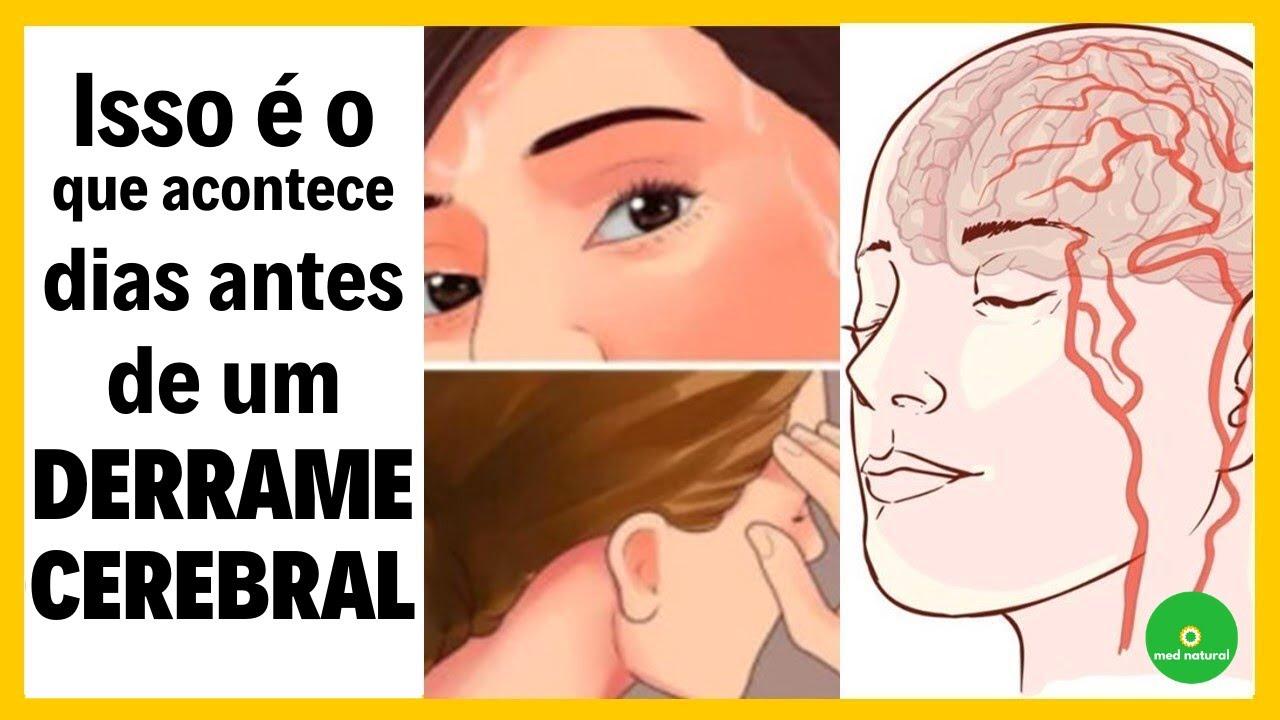7 Sinais que seu corpo dá antes de sofrer um AVC (derrame cerebral)