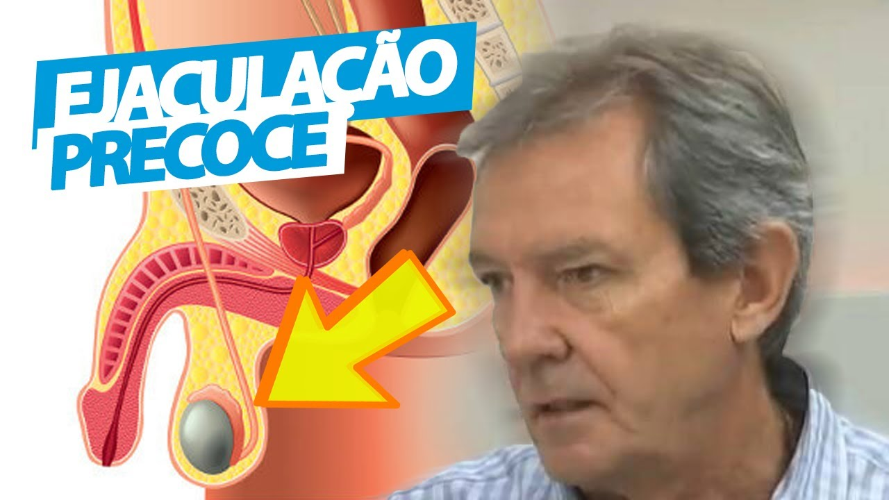 EJACULAÇÃO PRECOCE – Médico Urologista fala sobre as CAUSAS e TRATAMENTO em casa